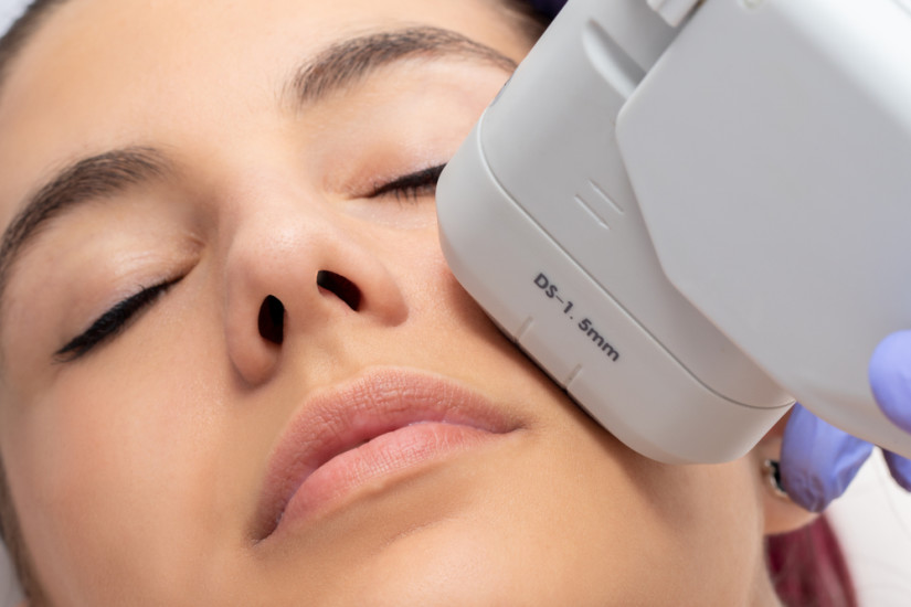 High-Intensity Focused Ultrasound For Face | Qunomedical