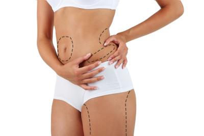 Liposuction Cost Guide, Abdominoplasty Cost Guide
