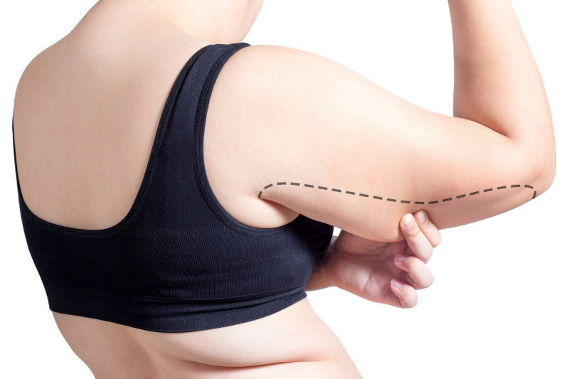 DE image 1 for Liposuction Cost Guide