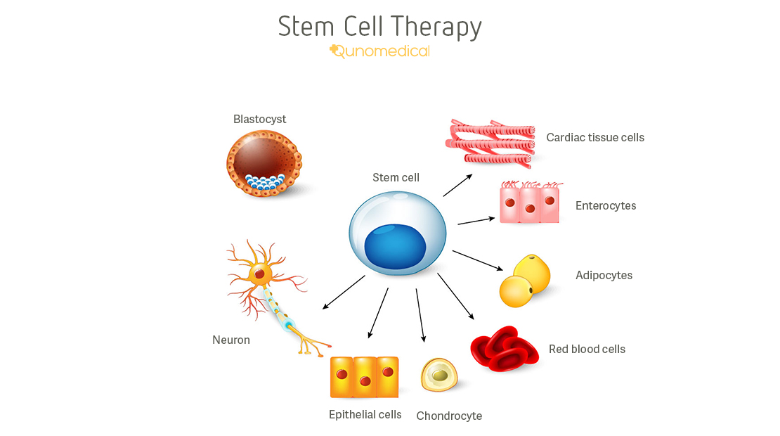 Stem Cell Therapy Explained Qunomedical