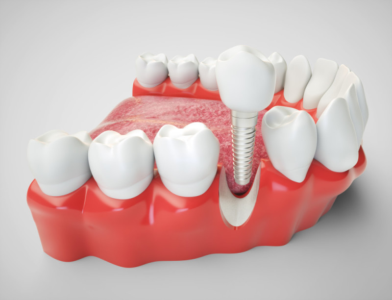 EN image 2 for Dental Implant Cost Guide