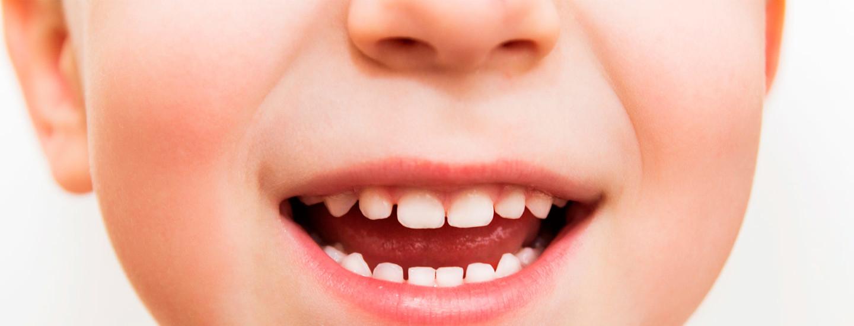 Hammaslääkärin vinkit lasten suunhoitoon