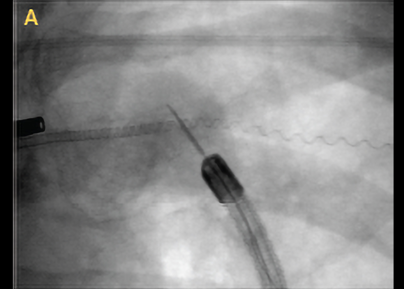 Fig 4. Fluoroscopic view of the RABguided needle biopsy of the left upper lobe nodule