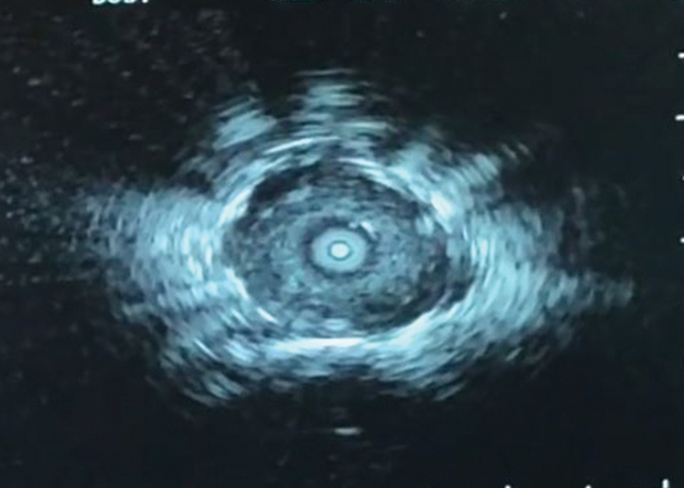 Fig 4. Concentric REBUS pattern after creating small airway passage to nodule