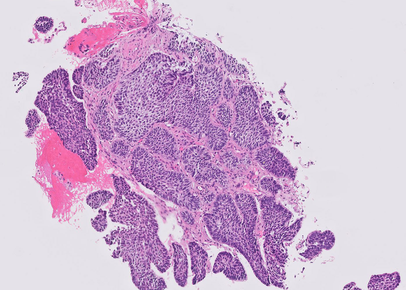 Fig 6. Pathology slide confirming diagnosis in the room