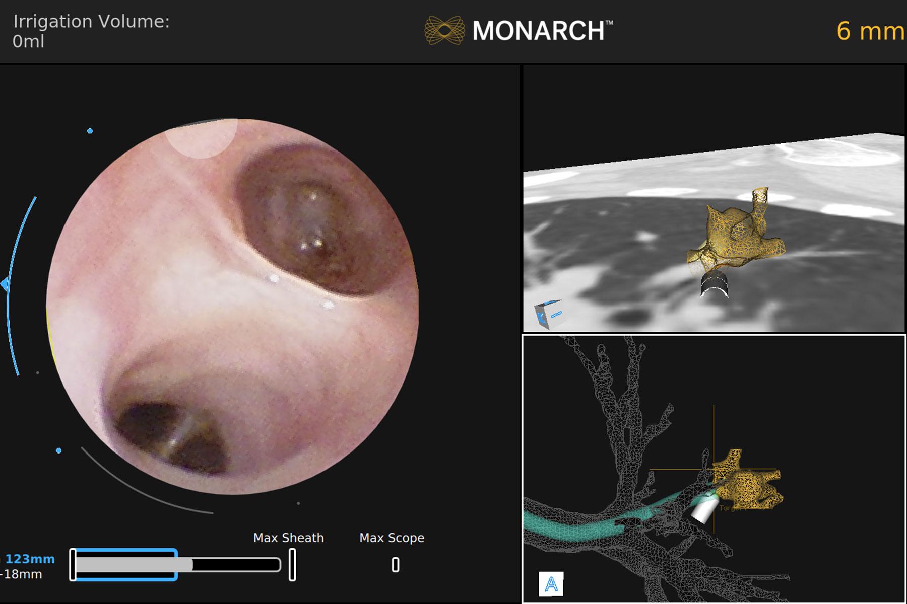 Fig 1. CT scan showing 8 mm nodule in left upper lobe
