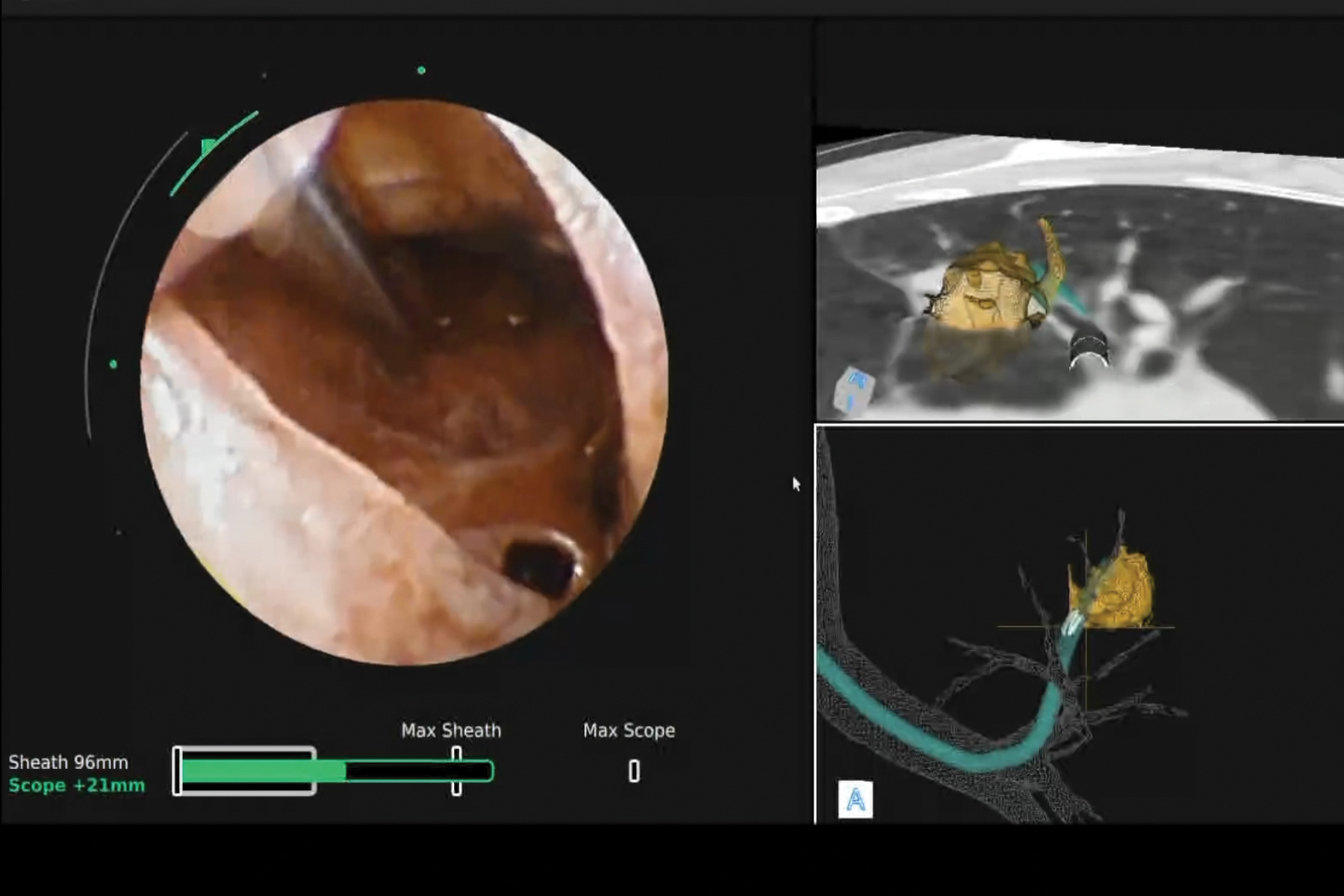 Fig 1. Biopsy needle (upper left) slides directly into a suspicious nodule. Biopsy obtained after using continuous vision and robotic tip control to create a path to the nodule and transform an eccentric REBUS image into a concentric pattern.