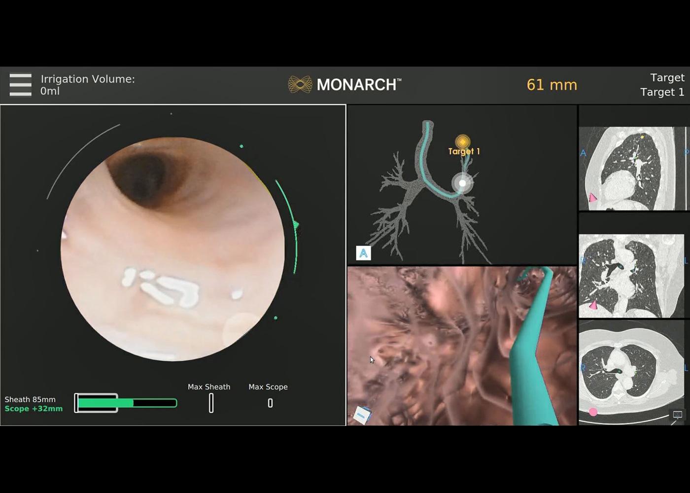 Fig 3. MONARCH® platform navigating to the area of interest