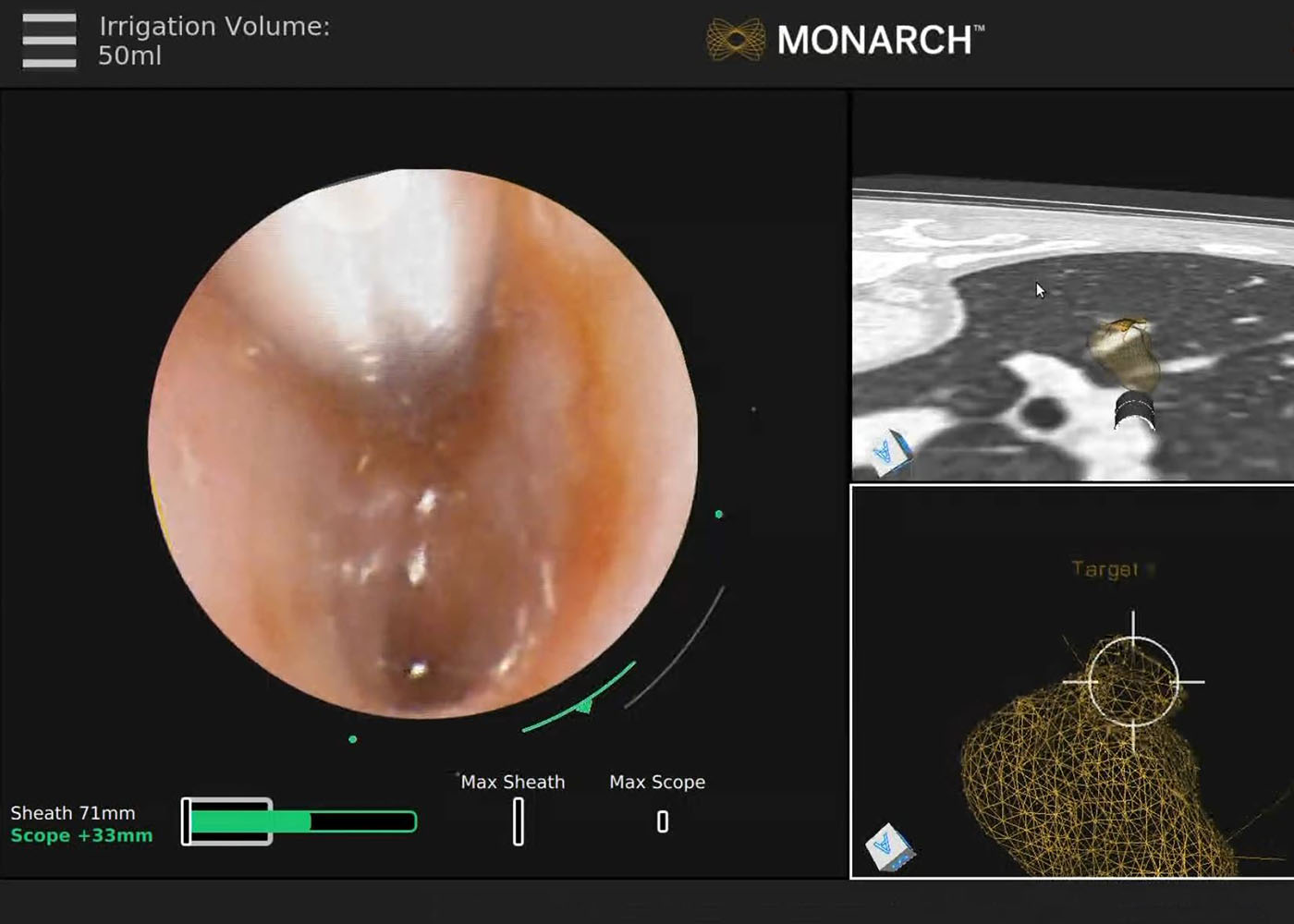 Fig 3. Camera view with REBUS probe present in upper left yielding eccentric pattern