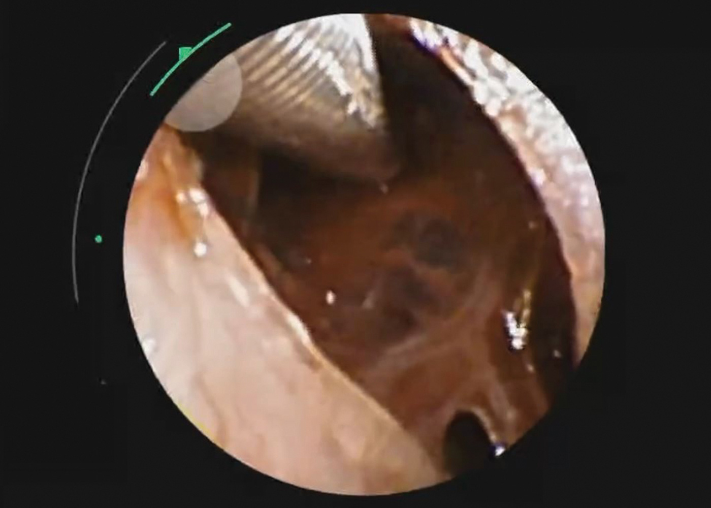 Fig 6. Camera view with REBUS prob inserted directly into nodule