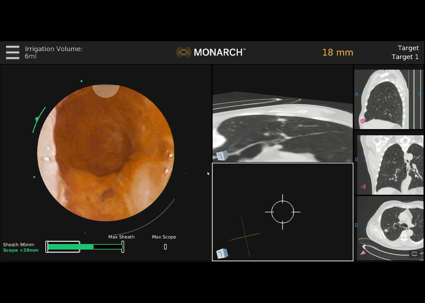 Fig 2. MONARCH® integrated camera view showing small airway hole penetrated by needle transitioning nodule from eccentric to concentric