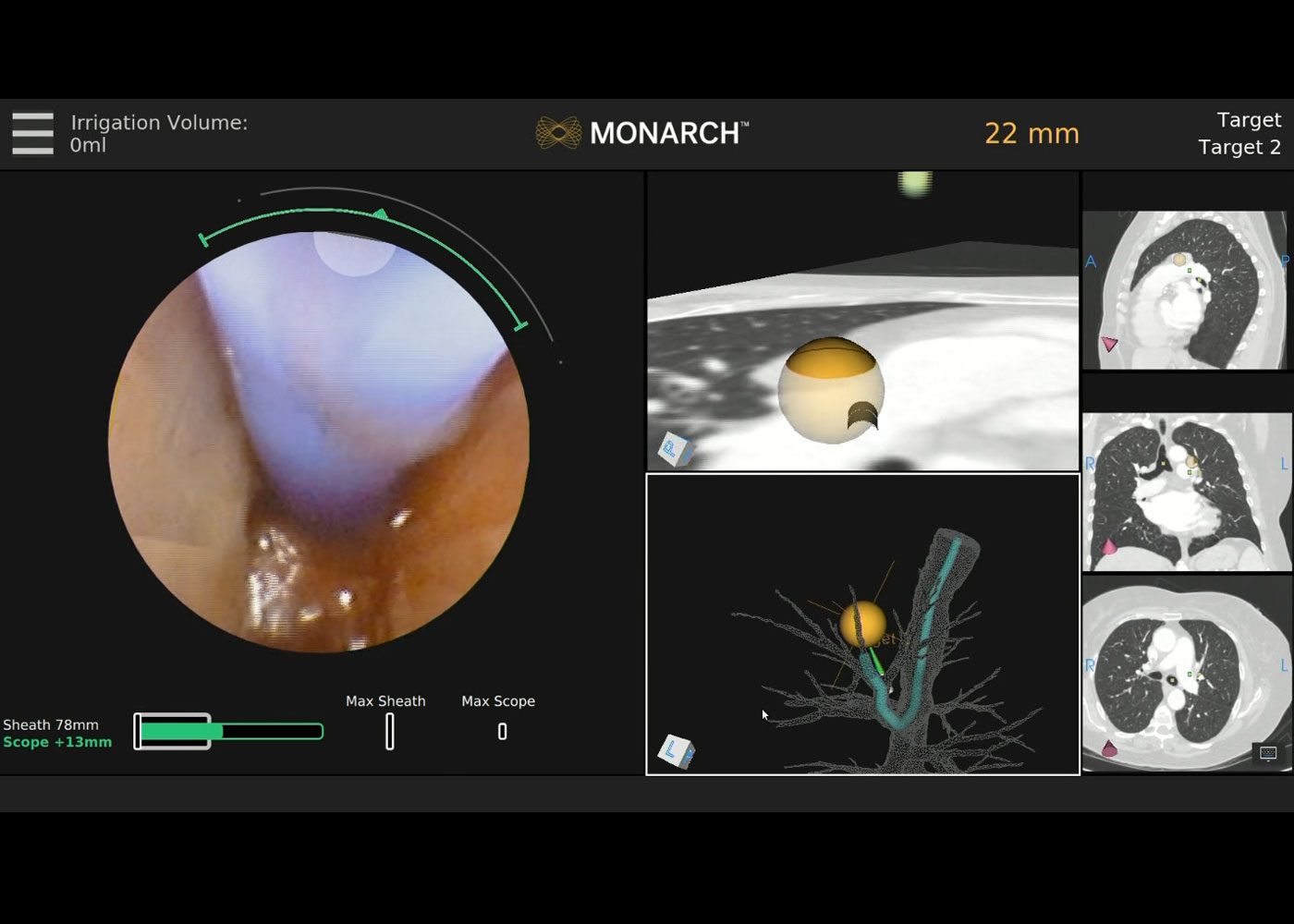 Fig 5. MONARCH® fused navigation with needle puncture location