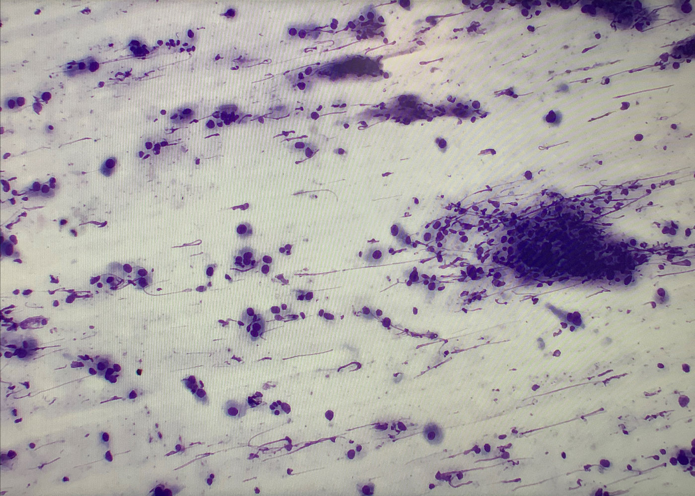 Fig 6. Tissue evaluated with ROSE (Adenocarcinoma)
