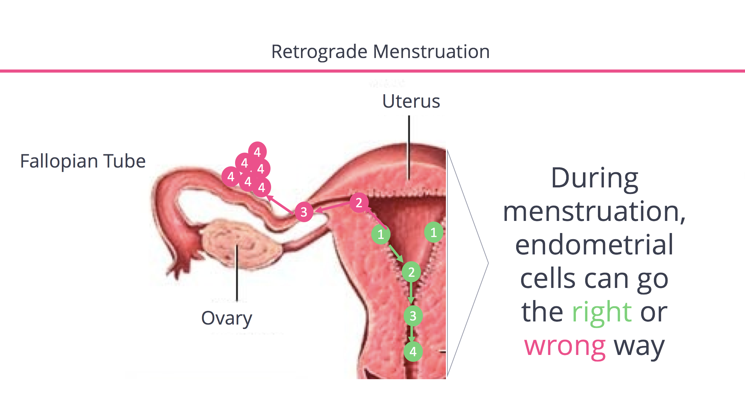 Endometriosis From Retrograde Menstruation