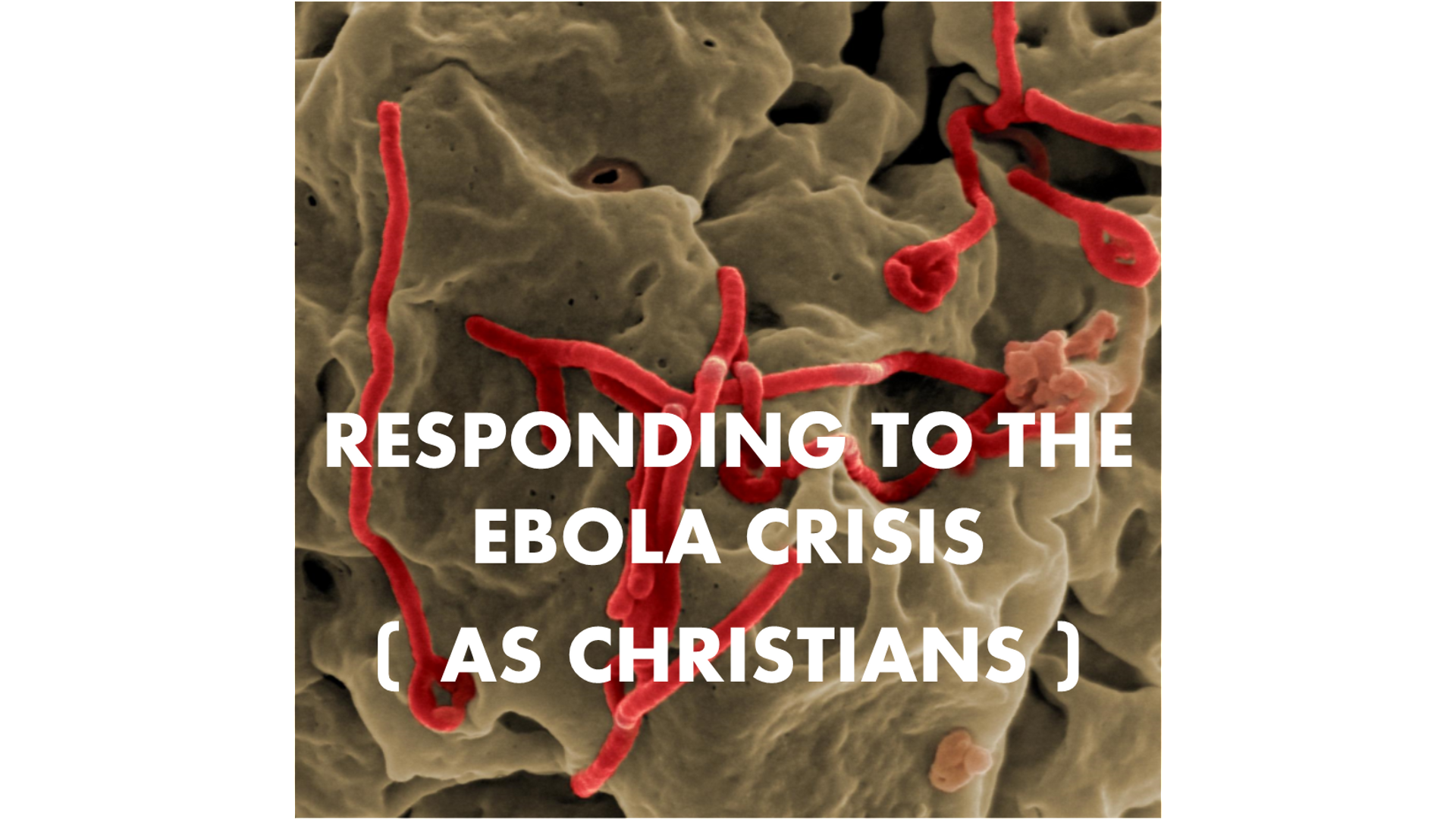 Ebola Arrives in Dallas: How Can Christians at Watermark Respond? Hero Image