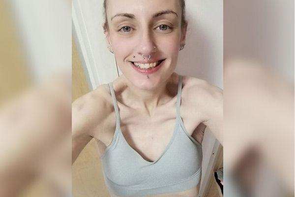 Kobieta zmagał się z zaburzeniami odżywiania