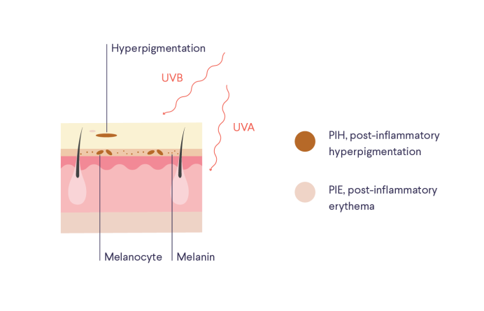 Illustration / diagram of skin with labels