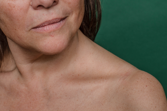 Closeup of bottom half of face and bare collarbone and shoulder of woman against a green background