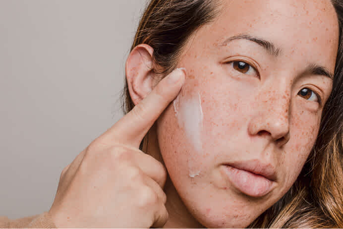 Closeup of woman's face and hand applying cream