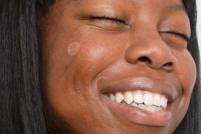 Closeup of woman smiling with emergency spot patch on cheek