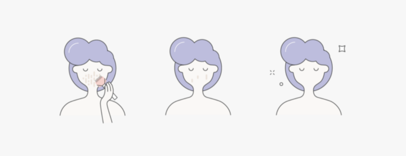 Graphic of 3 people with purple hair clearing acne from their skin