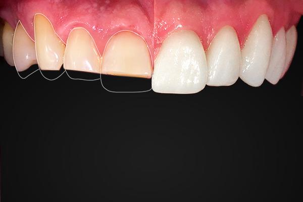 Aplicação de lentes de contato dental em Brasília