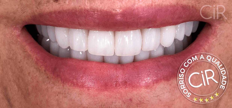 38 Irene Maria Braz - Implante - Depois