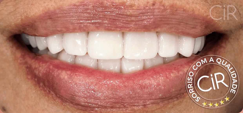 16-maria-romanini-implantes-protocolo-depois