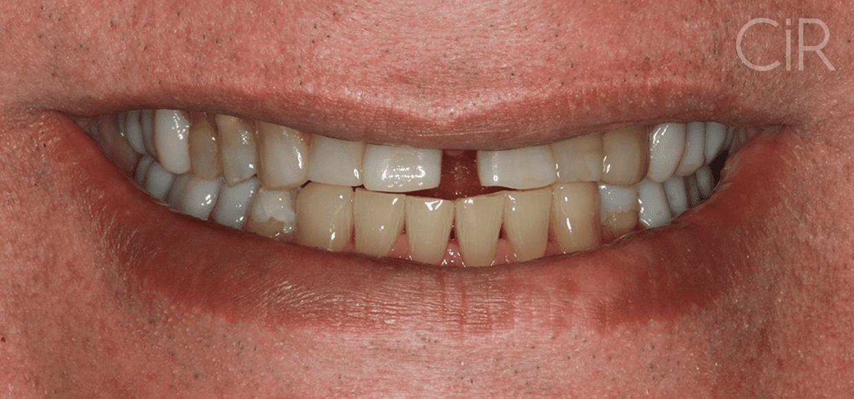 #42 Miguel Sarkis - Implantes e lentes -  Antes