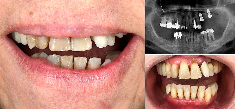 05-implante-cristina-antes-21