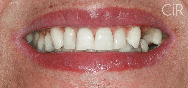 38 Irene Maria Braz - Implante - Antes