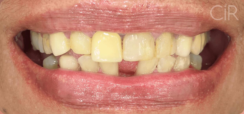 16-maria-romanini-implantes-protocolo-antes