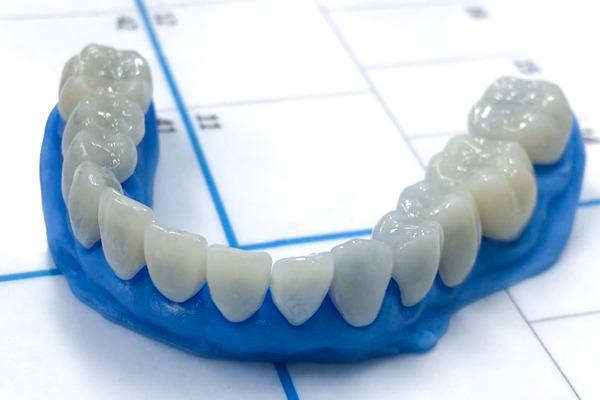02.Lentes (facetas) encaixadas em modelo escaneado e impresso direto da boca do paciente.