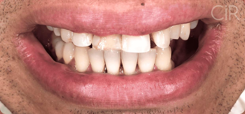 04-alino-implantes-protocolo-carga-antes