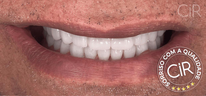 42 Miguel Sarkis - Implantes e lentes -  Depois