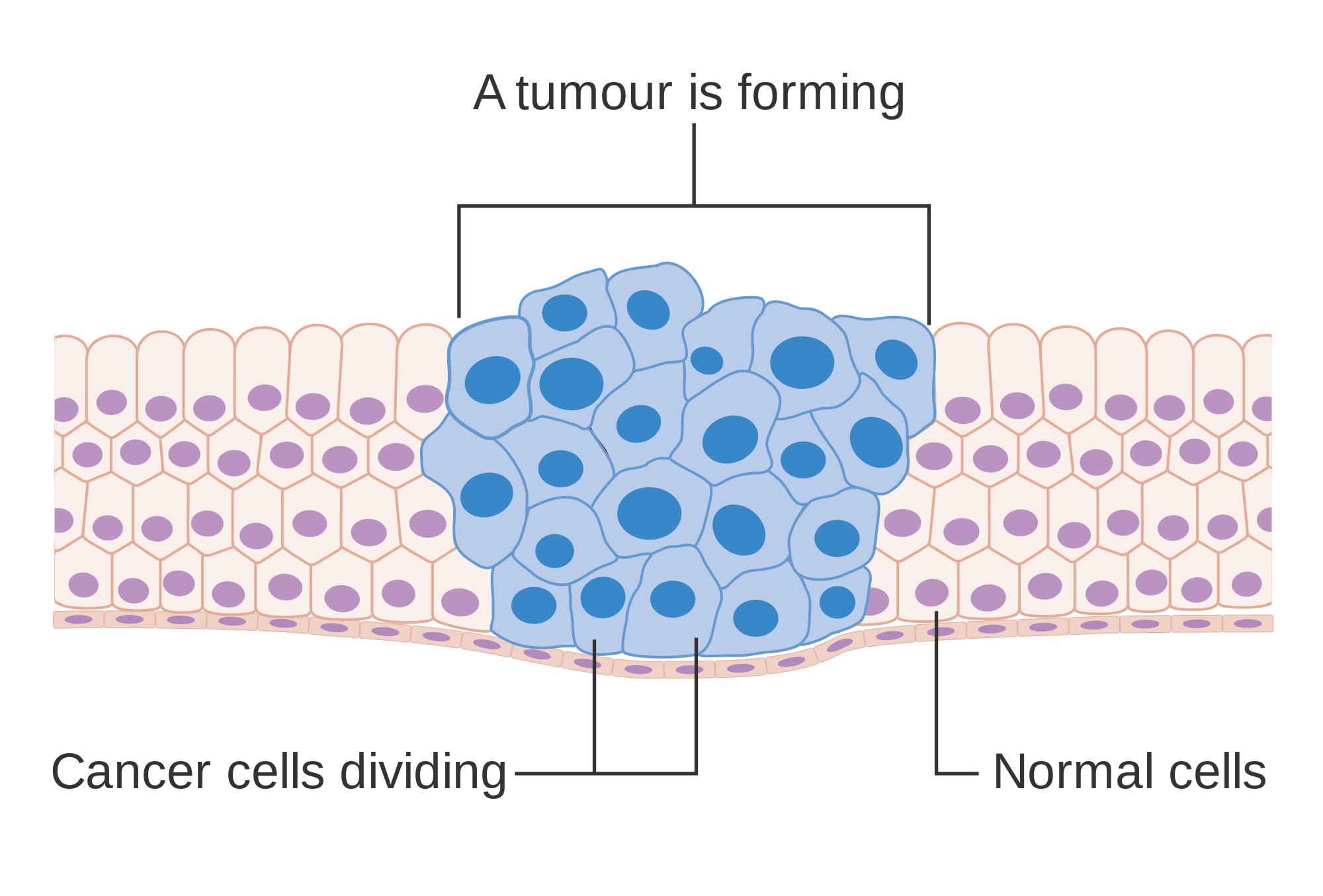 Diagram showing how cancer cells keep on reproducing to form a tumour CRUK 127-svg