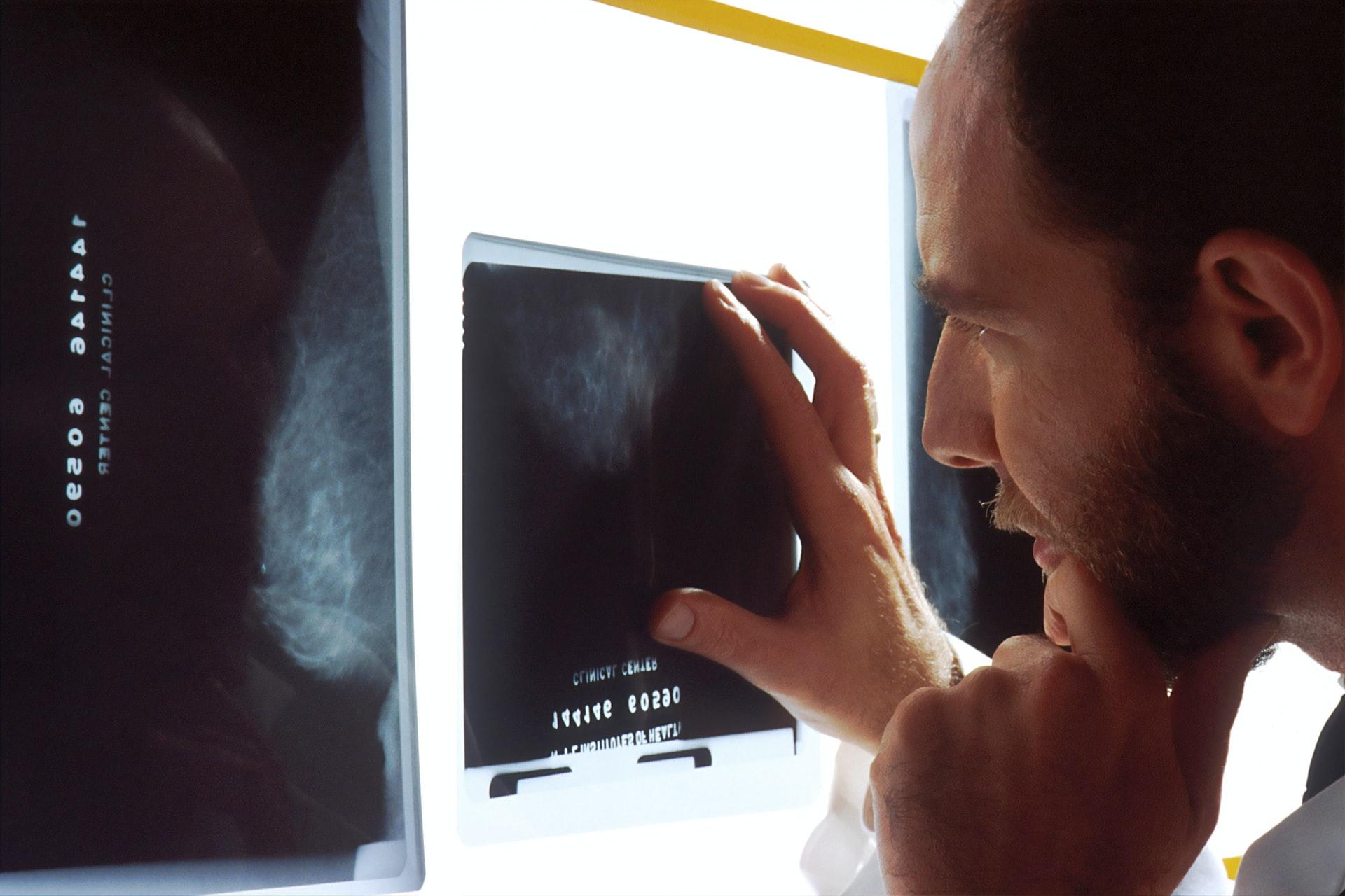 Diagnostyka nowotworu
