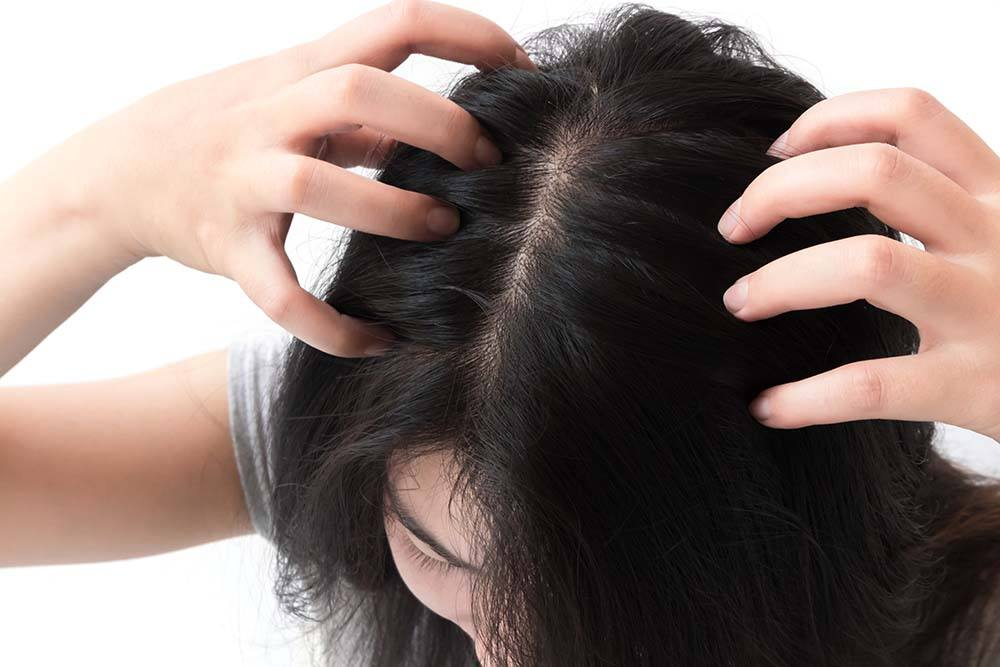 Can playing sports cause an itchy scalp?
