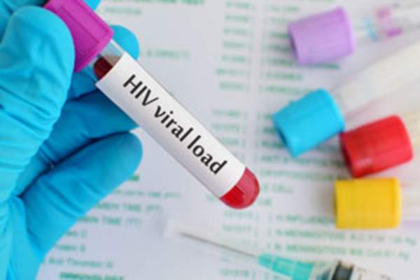 HIV viral load test