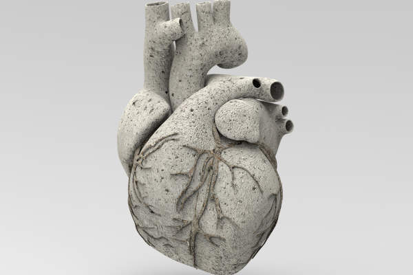 calcified heart
