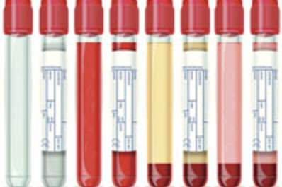 Understanding HIV-Related Lab Tests I: Complete Blood Count and Blood Chemistry Img