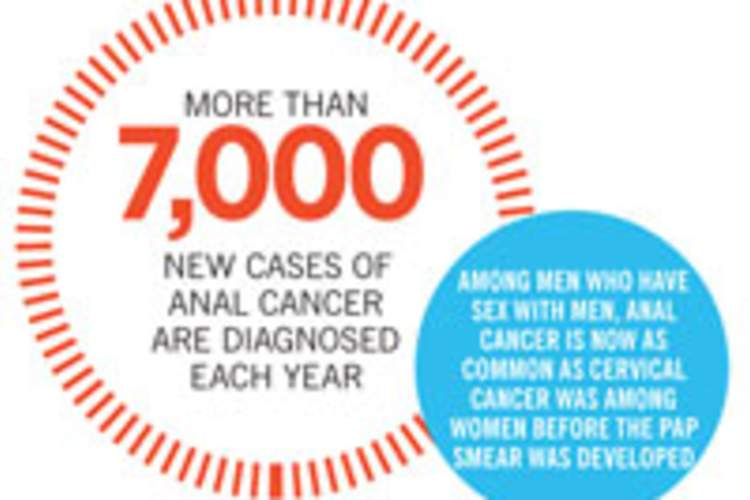 Anal Cancer: Are You at Risk? Img