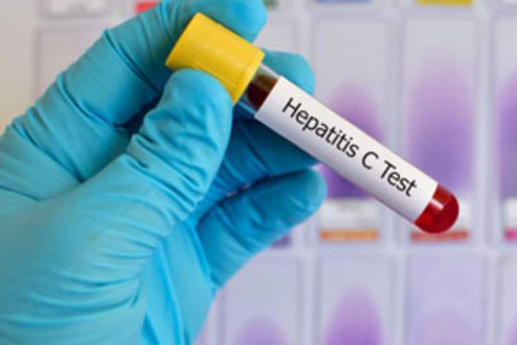Canadian Women's Experiences Receiving a Hepatitis C Diagnosis Img
