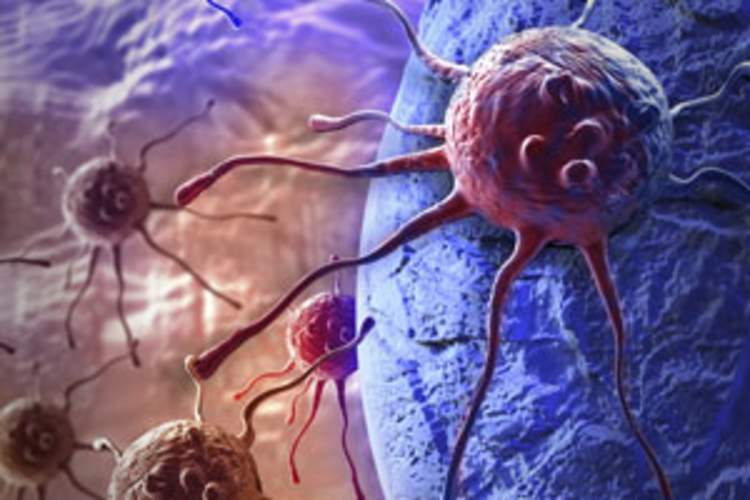 New Cancer Rates Climbing With Age in HIV Patients, but Age Impact Differs by Cancer Type Img