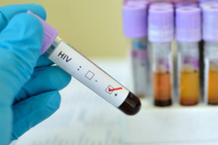 New HIV Rate Similar Above and Below Age 45 in 86,836-Person U.S. Study Img