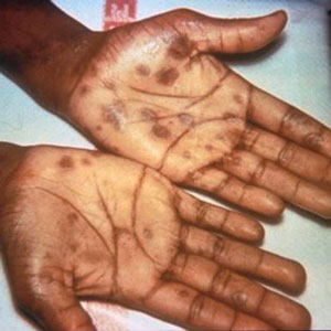 Secondary rash from syphilis on palms of hands