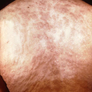 Secondary rash from syphilis on torso