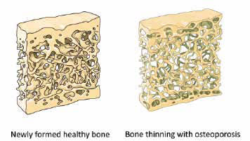 Healthy Bone and Osteoporosis