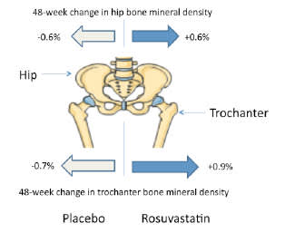 Impact of Rosuvastatin on Bone Mineral Density