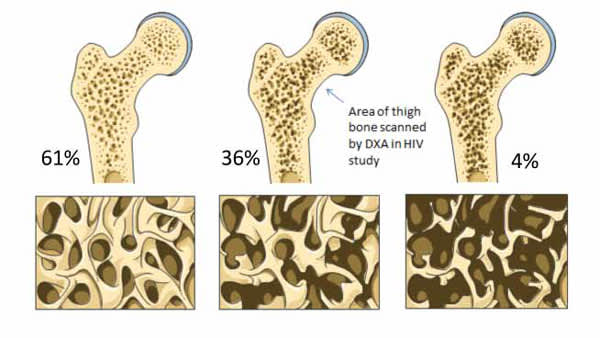 Normal Bone, Osteopenia and Osteoporosis